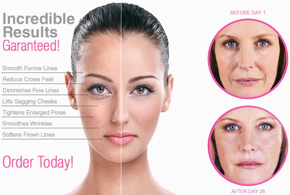 Wrinkle-Contour-Result